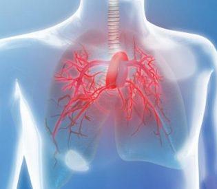 Insuficijencija zaliska plućne arterije- Simptomi i lečenje