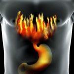 Način kako da se leči gastroezofagealna refluksna bolest ( GERB )