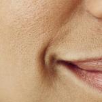 Ovo su najefikasniji načini za suzbijanje proširenih pora na licu