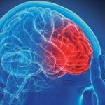 Simptomi koji vas upozoravaju na moždani udar