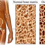 Osteoporoza- Lečenje