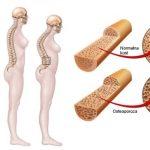 Osteomalacija- Simptomi i lečenje