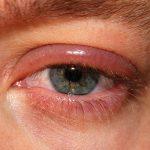 Hronično zapaljenje očnih kapaka