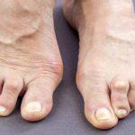 Infekcijski artritis