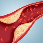 Saveti kako da korigujete ishranu kod povišenih triglicerida i holesterola