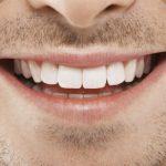Povezanost bolesti zuba i artritisa