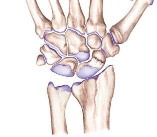 Ovo niste znali o osteoporozi