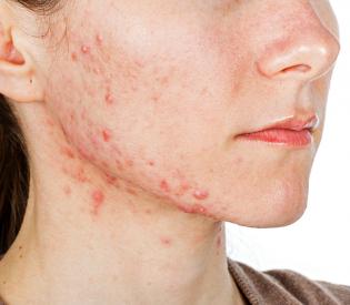 Saveti kako da očistite lice od akni