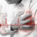 Kako da prepoznate infarkt miokarda
