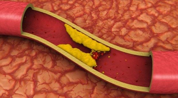 Krvni-sud-holesterol