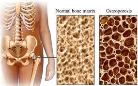 osteopo