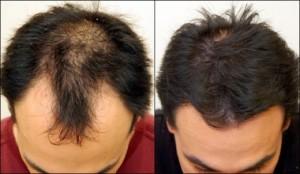 hair_transplant