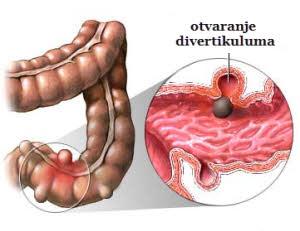 kako-se-manifestuje-divertikuloza-kolona