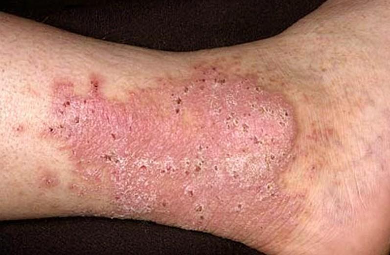lichen-simplex-chronicus-pictures-5